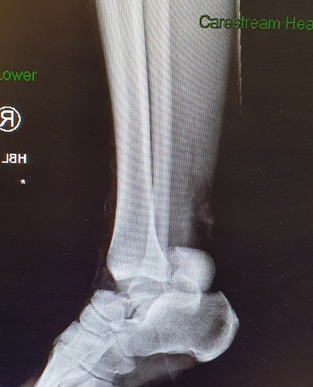 X-Ray of my right ankle, showing that my Talus (ankle bone) has broken. The bone is now lodged near my heel. This X-Ray is prior to surgery